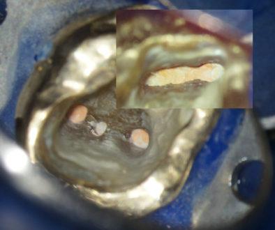 Zahnwurzelbehandlung in Regensburg