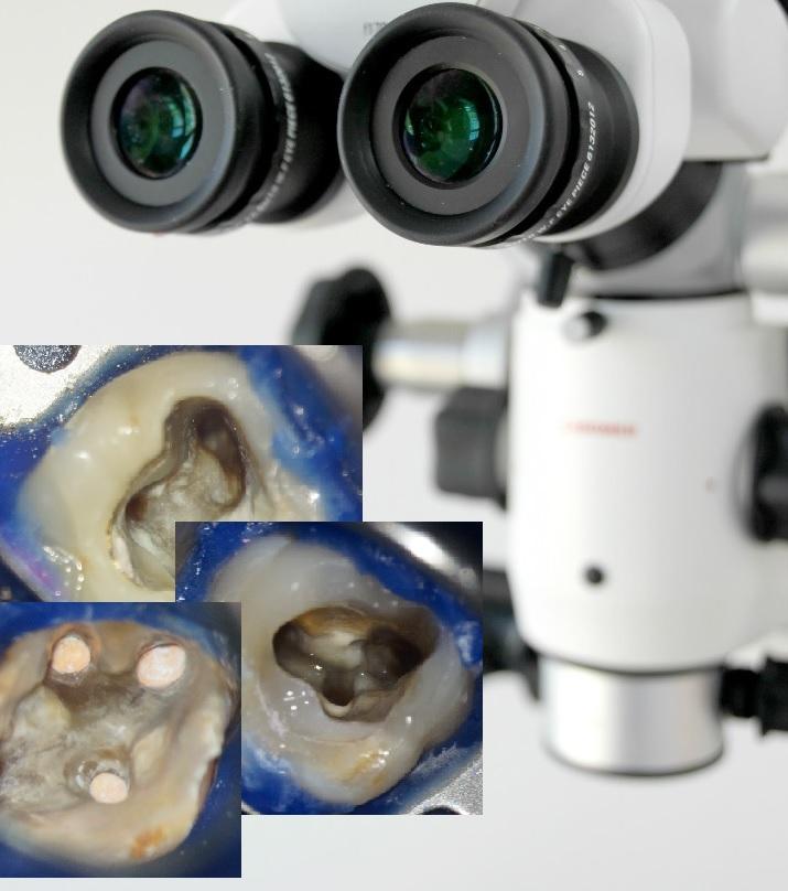 mikroskopische wurzelbehandlung